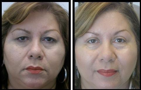 upper eyelids blepharoplasty-012
