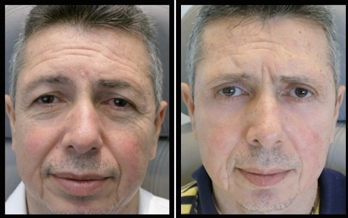 2 upper lower lids blepharoplasty-001