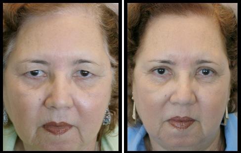 upper eyelids blepharoplasty-005