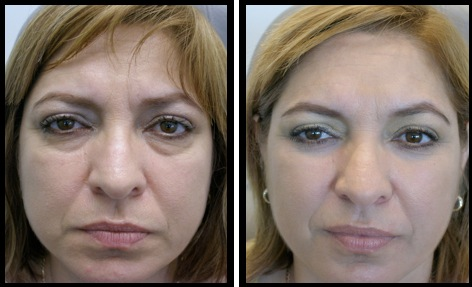 lower eyelids blepharoplasty