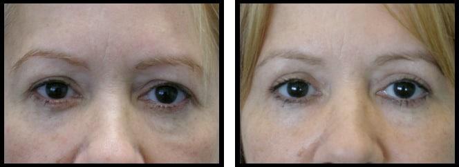 upper eyelids blepharoplasty-006