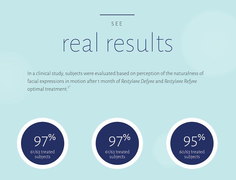 Restylane Defyne real results