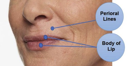 restylane kysse injection
