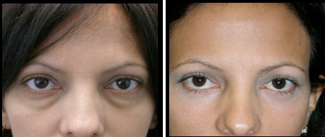 lowereyelidsblepharoplasty-001