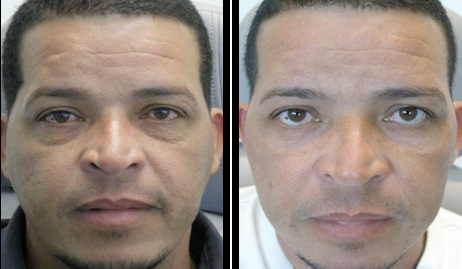 lowereyelidsblepharoplasty-002