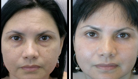 lowereyelidsblepharoplasty-003