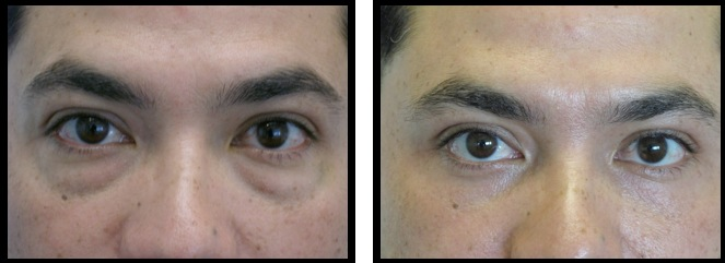 lowereyelidsblepharoplasty-004