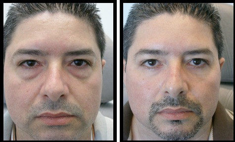 lowereyelidsblepharoplasty-006
