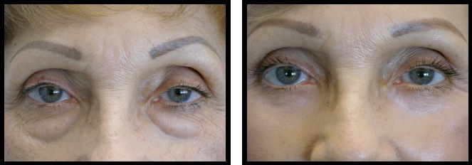 lowereyelidsblepharoplasty-007
