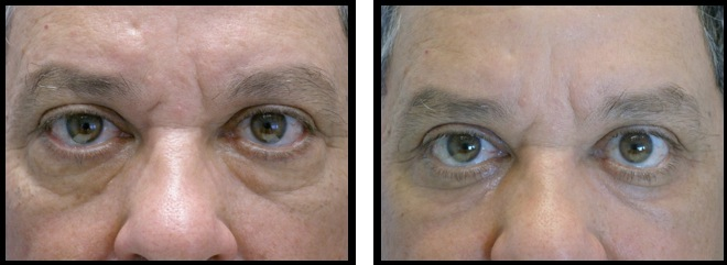 lowereyelidsblepharoplasty-008