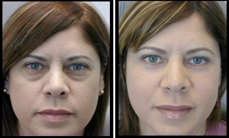 lowereyelidsblepharoplasty-009