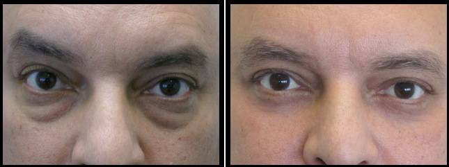 lowereyelidsblepharoplasty-010