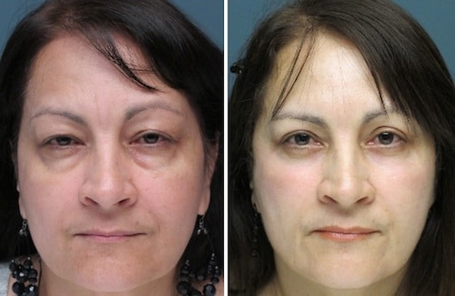 upper and lower eyelids blepharoplasty before and after patient image