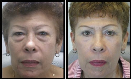 upper and lower eyelids blepharoplasty before and after middle aged female patient image