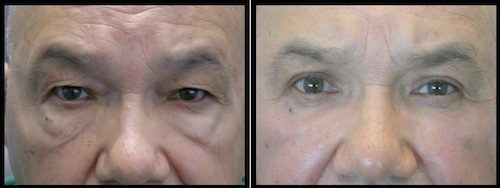 upper and lower eyelids blepharoplasty before and after mature patient image