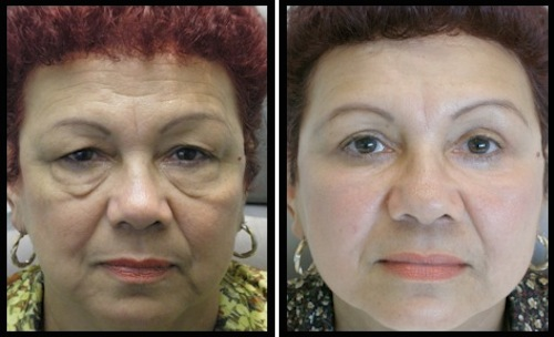 upperlowerlidsblepharoplasty-004