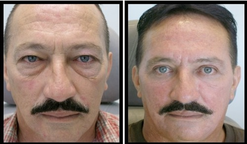 upper and lower eyelids blepharoplasty before and after male patient image with very satisfying results