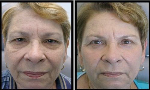 upper and lower eyelids blepharoplasty before and after middle aged female patient image with more relaxed look