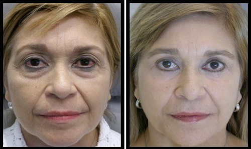 upper and lower eyelids blepharoplasty before and after female patient image with more refreshed looked