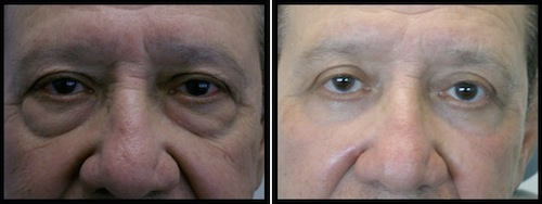 upperlowerlidsblepharoplasty-009