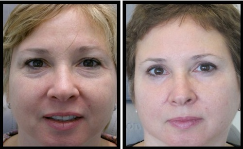 upper and lower eyelids blepharoplasty before and after female patient picture