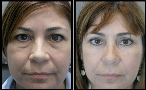 upper and lower eyelids blepharoplasty before and after female patient photo