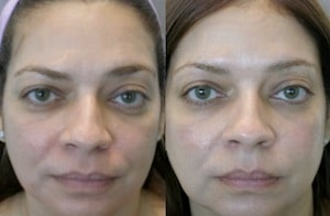 5 mistakes most common to the botox injections - Robot de cocina lady master future ...