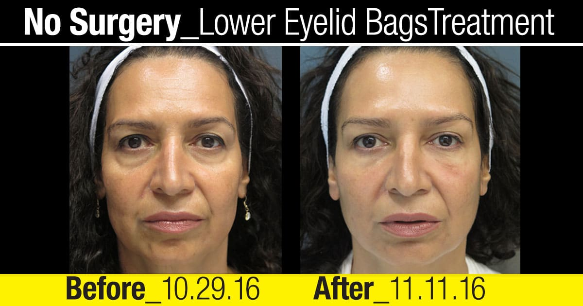 cbc-nyc-2016-patient-testimonial-no-surgery-lower-eyelid-treatment