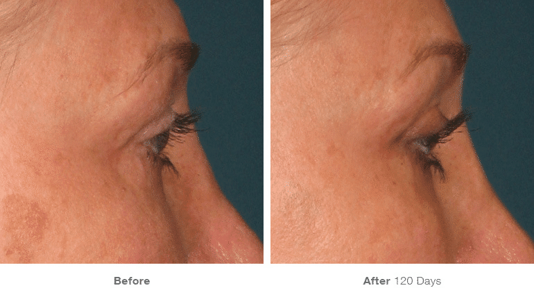 Ultherapy, Face Lift, Non-surgical Lift, Brow Lift