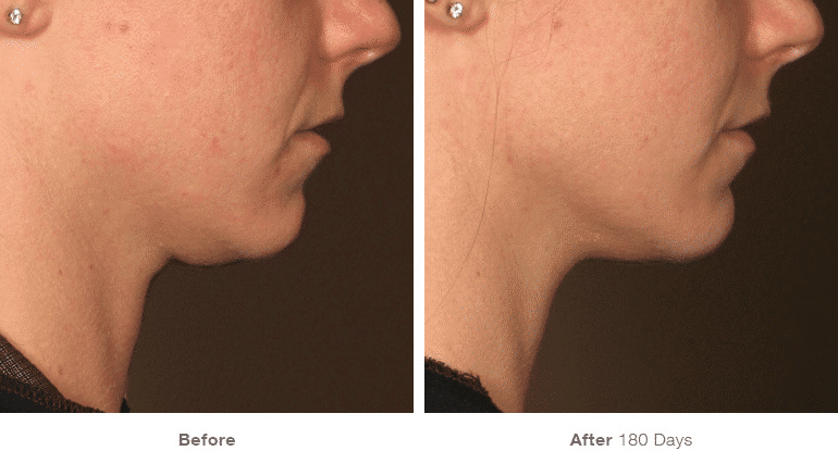 Ultherapy Puerto Rico  Nonsurgical Way to Lift, Tighten, and