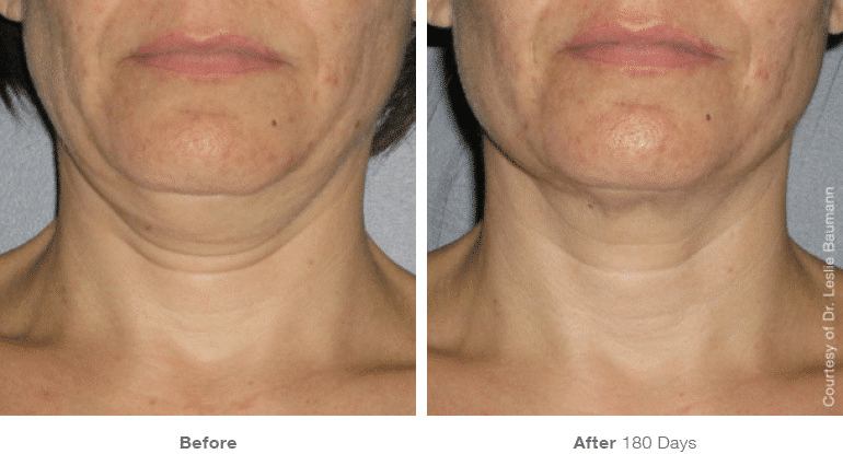 Ultherapy, Face Lift, Non-surgical Lift, Neck Lift
