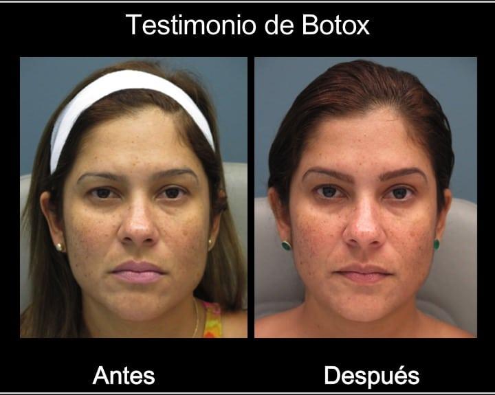 testimonial botox1