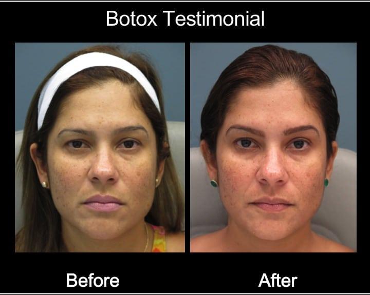 testimonial botox3