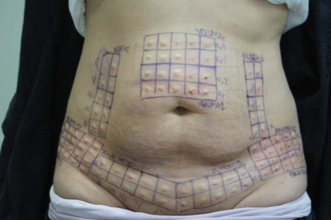 Durability, Behavior, and Tolerability of 5 Hyaluronidase Products -- Abdominoplasty