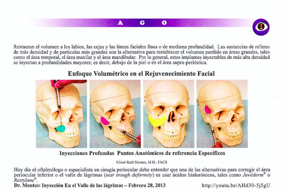Conceptos Anatómicos del Envejecimiento y Sustancias de Rellenos 2