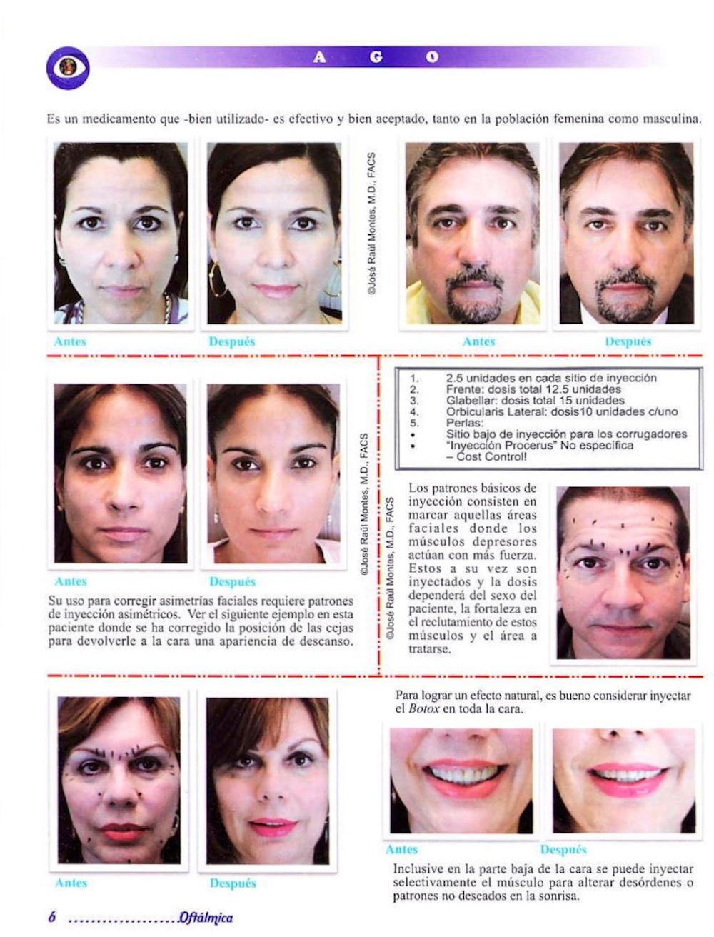 Taller de Botox®- Mi Experiencia Después de Más de 15 Años de Uso 2