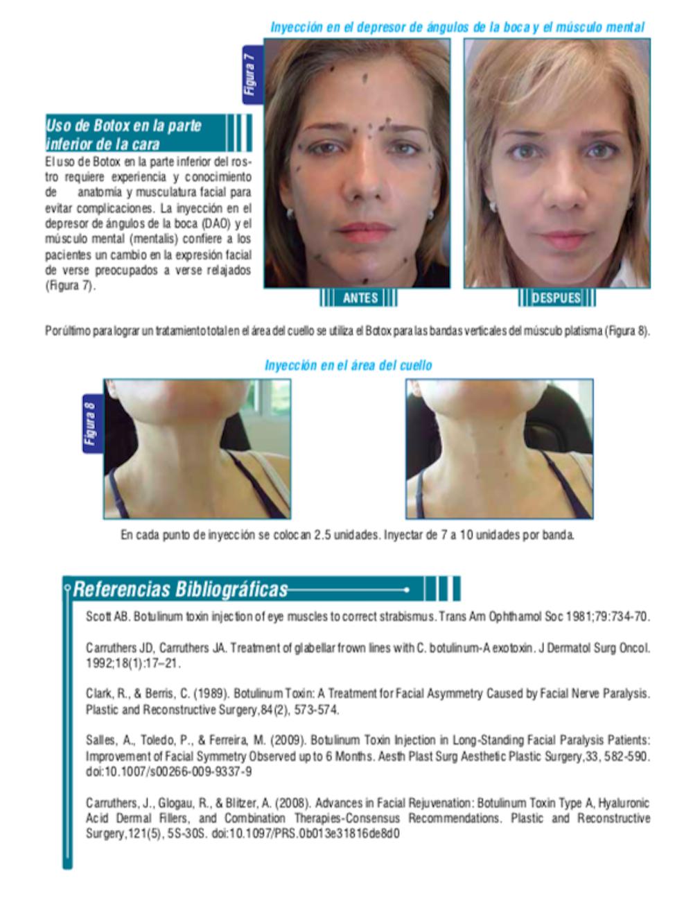 Toxina Botulínica Tratamiento Estético_Mi experiencia 5