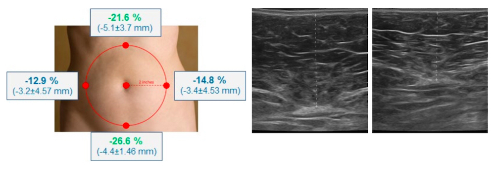 emsculpt ultrasonography study highlights