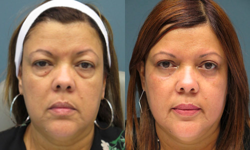 blepharoplasty and lower eyelid skin co2 laser skin resurfacing patient