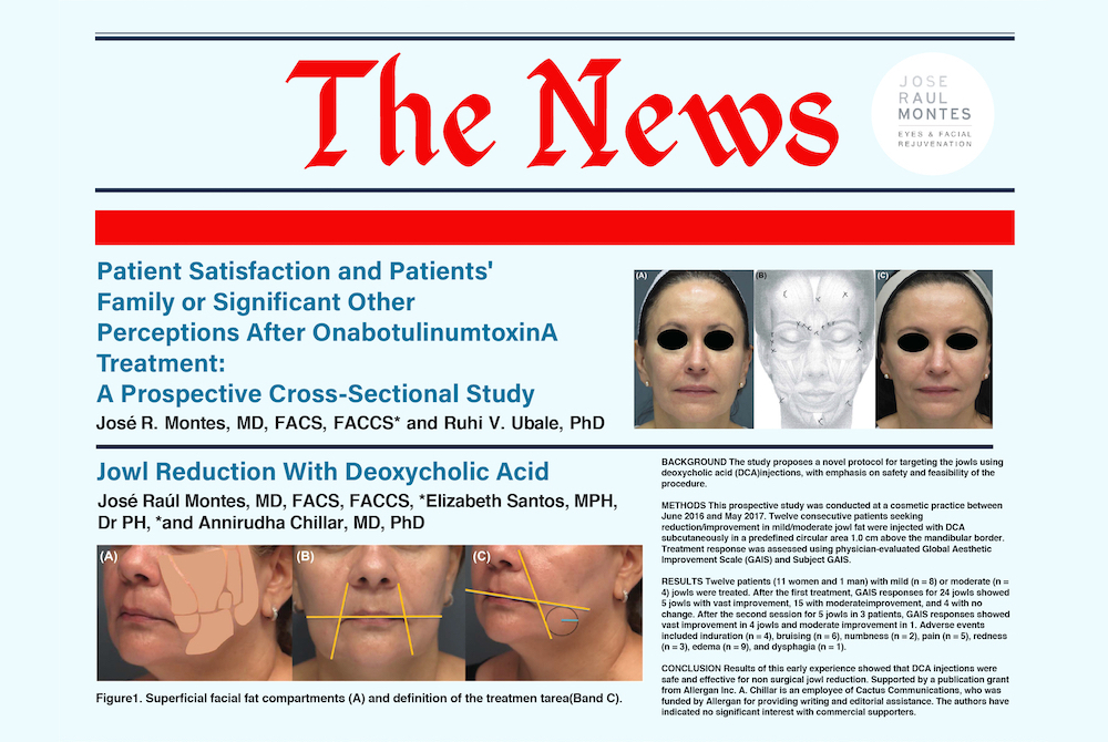 botox satisfaction jowl reduction dca header