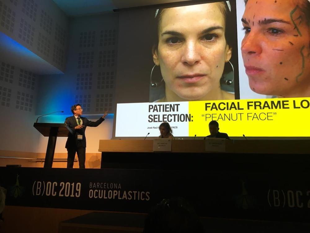 barcelona oculoplastics 2019 conferencias dr montes 11