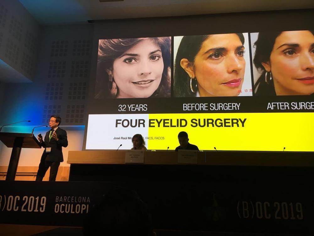 barcelona oculoplastics 2019 conferencias dr montes 7
