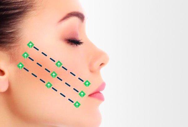 silhouette instalift gradual regeneration collagen