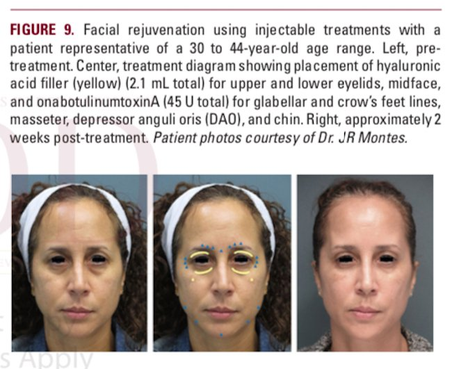 understanding the female hispanic and latino american facial aesthetic patient header figure 9