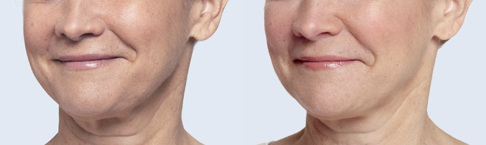 restylane lyft patient face 2