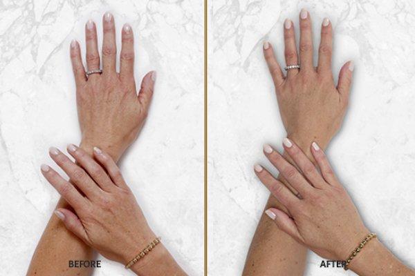 restylane lyft patient hands 2