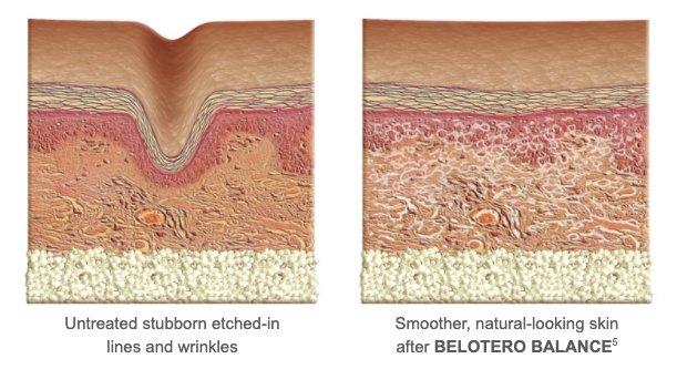 belotero balance how it works